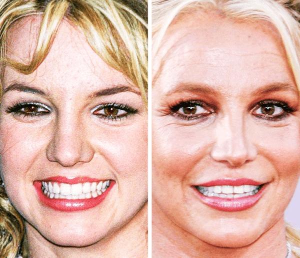 Britney Spears - 17 Yaş ve 37 Yaş