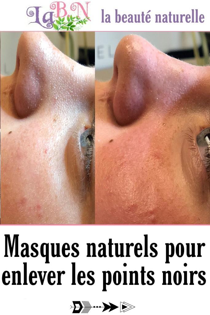 Masques naturels pour enlever les points noirs
