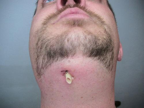 Www Bestogdendentist Com Blog What Is A Tooth Abscess