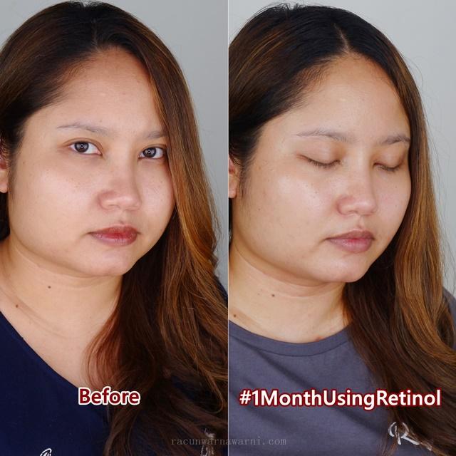 before-after testimoni hasil penggunaan avoskin miraculous retinol toner dan ampoule selama satu bulan