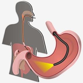 Nội soi dạ dày có cần nhịn ăn không Thuc-hien-noi-soi-da-day-mat-bao-lau