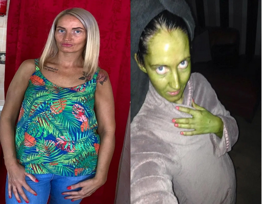 Woman turns green after using expired fake tan cream