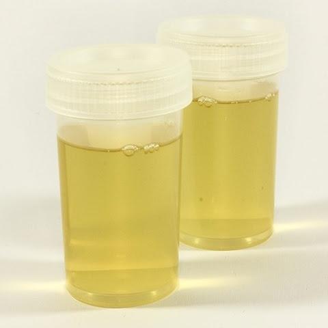 proses pembentukan urine