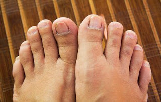 5 Disgusting Things That Can Happen To Your Feet