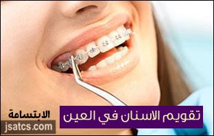 اسعار تقويم الاسنان في العين
