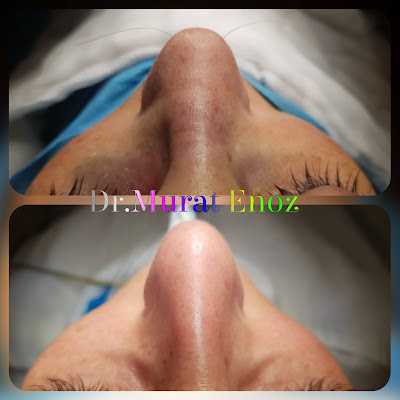 Aim of Rhinoplasty Operation