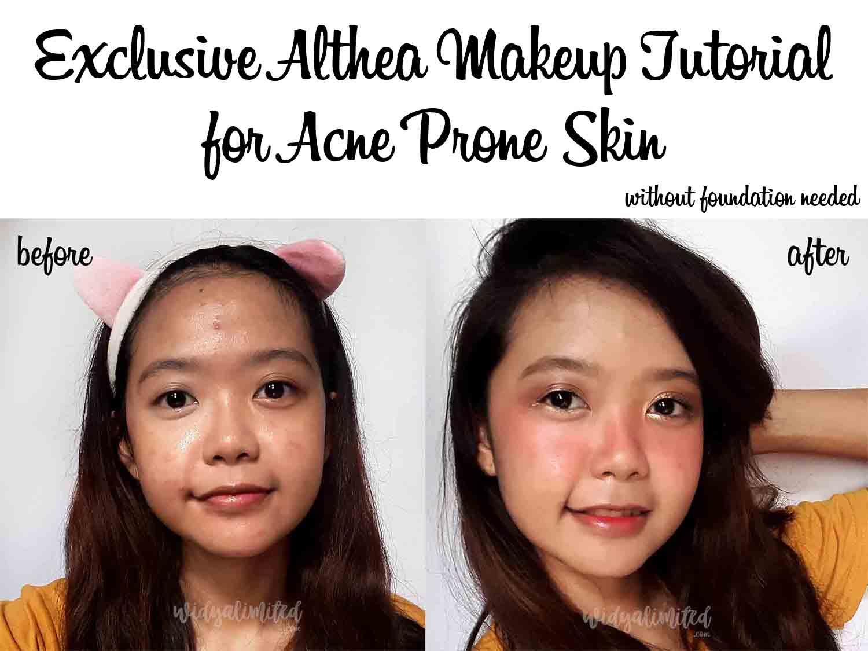 [Tutorial Makeup] Takut Wajah Semakin Berjerawat, tapi Harus Makeup? Ini Solusinya ! [Bahasa Indonesia]