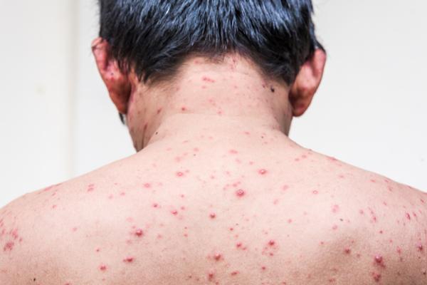 चेचक के लक्षण, कारण और घरेलू इलाज : Home Remedies for Chickenpox (Small pox)