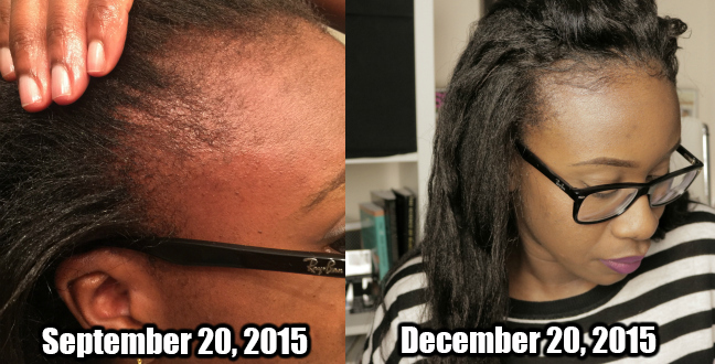 Castor Oil Challenge Part 10 Results - My Edges Are Coming ...
