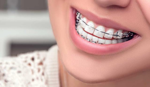 اخصائى تقويم اسنان لمركز طبى بالسعودية بالرياض