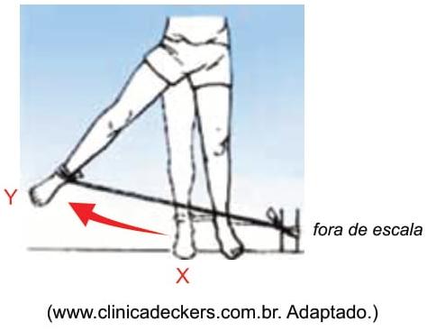 FAMERP 2021: Em uma sessão de fisioterapia, um paciente executa um movimento lateral com a perna, alongando uma fita elástica, como mostra a figura.