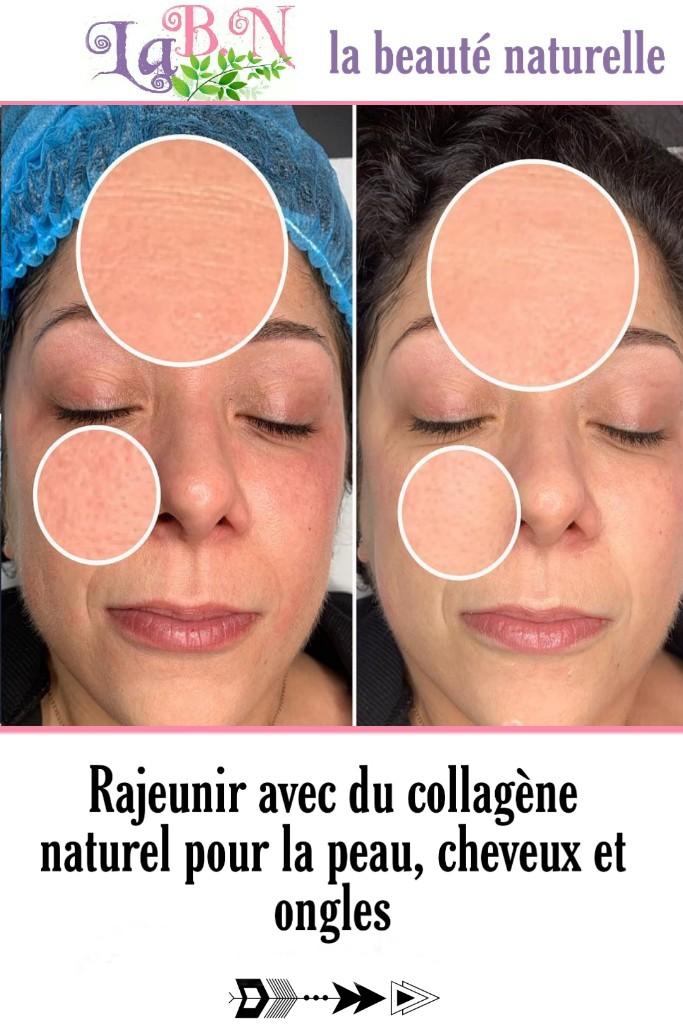 Rajeunir avec du collagène naturel pour la peau, cheveux et ongles
