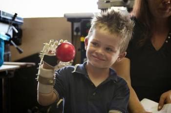 Liam (5 anni) afferra una pallina con Robohand