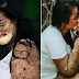 """Babaeng may """"Rare Skin Condition"""", Ibinahagi ang Kwento ng Pag-iibigan nilang Mag-asawa"""