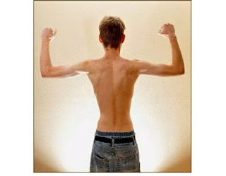 What is Thinness or Underweight ?