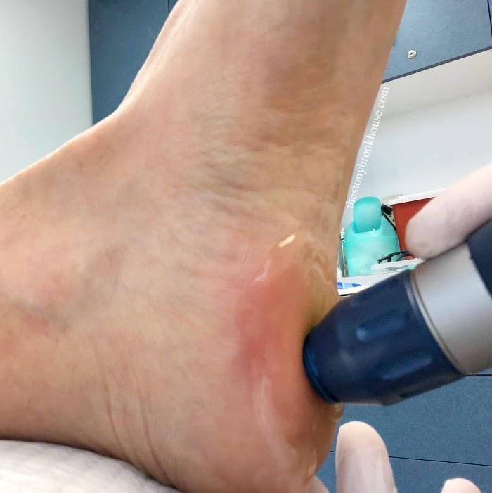 Closeup of shockwave treatment for plantar fasciitis