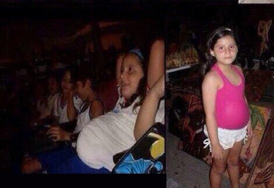 طفلة تبلغ من العمر 11 عاماً و حامل بشهرها السابع!شاهد الصور التي اثارت جدلاً واسعاً!