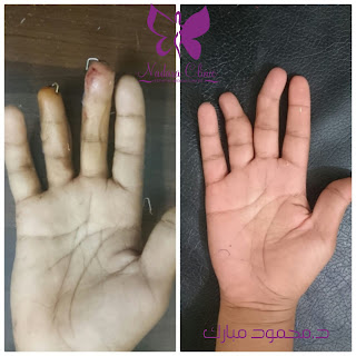 جراحة تشوهات الاصابع