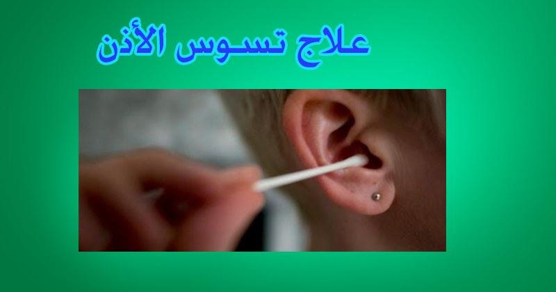 تسوس الأذن الاسباب والعلاج