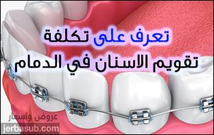 اسعار تقويم الاسنان في الدمام