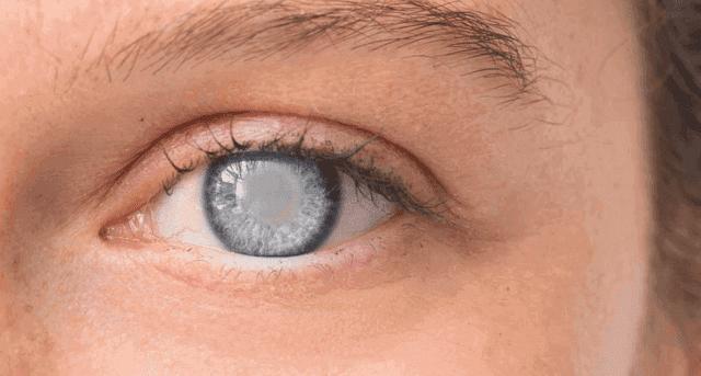 ما هي عملية إعتام عدسة العين و تفاصيل تحضيرها