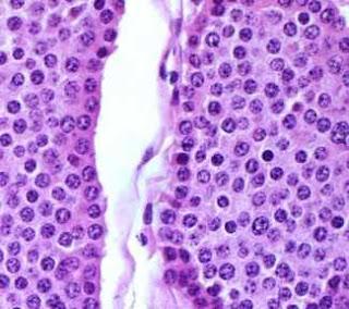 karsinoid tumor