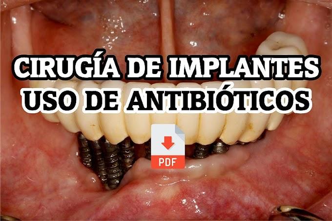 PDF: Uso de Antibióticos en Cirugía de Implantes: Una Revisión Sistemática
