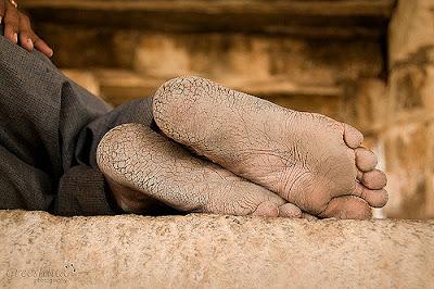 फटी एड़ियों को बनाये सुन्दर और मुलायम : Make Cracked Heels Soft And Beautiful !