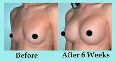 Secrets To Natural Breast Enlargement 70
