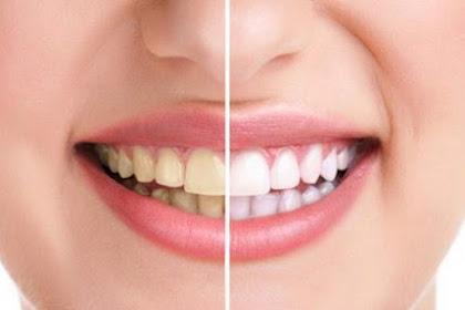 Jarang Diketahui Orang, 5 Bahan Alami ini Ampuh Buat Gigi Kamu Putih tanpa Flek Kuning