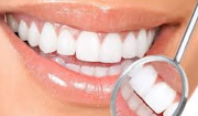 Tips Tepat Menjaga Kesehatan Gigi
