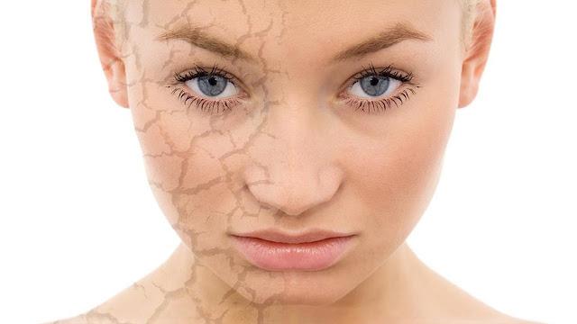 Consejos para hidratar la piel seca de manera natural.