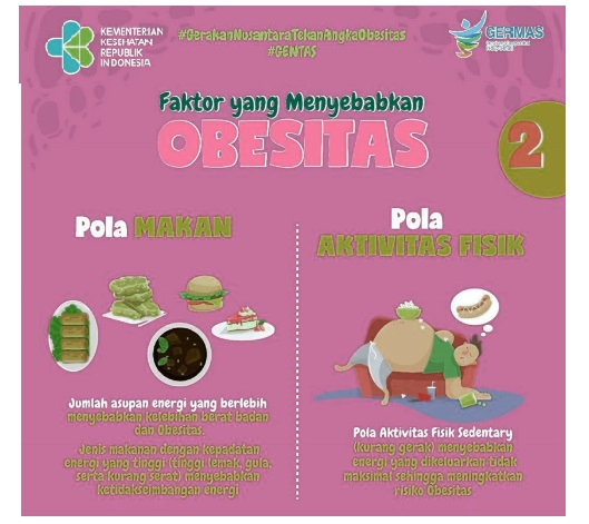 Obesitas Anak Indonesia 2020