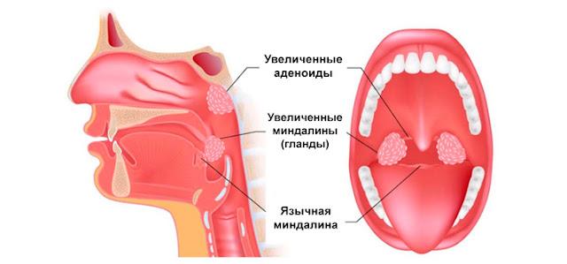лечить ли аденоиды
