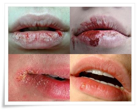 Cara Mengatasi Bibir Kering Dan Pecah-Pecah Alami