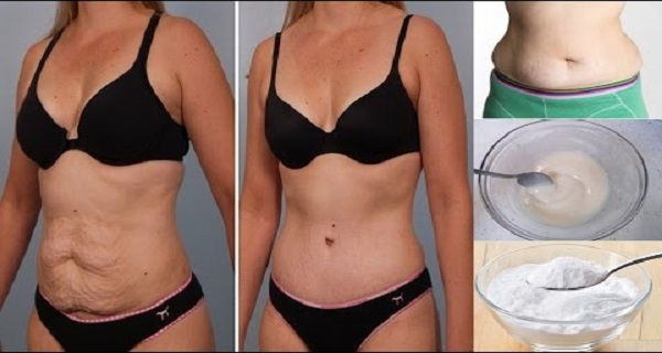 5 Ways Baking Soda Can Help You Lose Arm, Thigh, Belly
