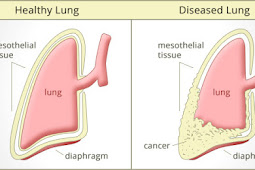 Smoking and Mesothelioma