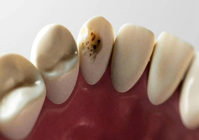 Dental Caries Treatment: Ways to Prevent Cavities and Protect your teeth.