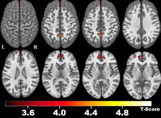 図:脳卒中のデフォルトモードネットワーク