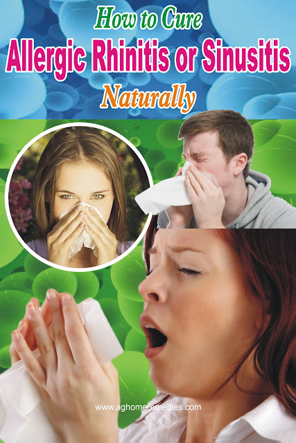 How To Cure Allergic Rhinitis Or Sinusitis Naturally Ag