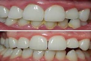 Cara Aman Menghilangkan Karang Gigi dengan Cepat