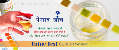 पेशाब जांच, Urine Test in Hindi, pesab janch, pesab janch kya hai, About Urine Test in Hindi, यूरिन टेस्ट क्या है