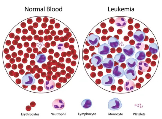 What is leukemia type, causes, symptoms and treatment explained 2020