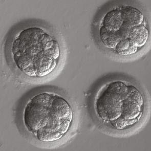 Los cambios más preocupantes son cuando en el ovula o en los esperamtozoide