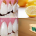 Prevent Tooth Decay, Protect Your Enamel, And Make Your Teeth White And Strong Only With One Ingredient