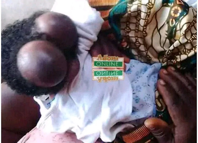 20-Year-Old Woman Gives Birth To Baby With Two Heads In Ghana