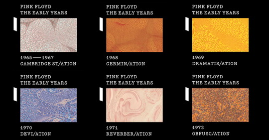 "PINK FLOYD ""The Early Years, 1965 - 1972: The Individual Volumes"" Out March 24"