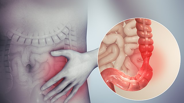 3 Most effective ways to cure Irritable Bowel Syndrome