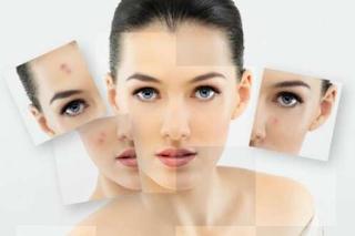 cara menghilangkan lemak di wajah