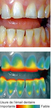 Erosion dentaire Causes Signes et Prévention